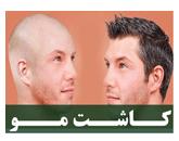 کاشت موی طبیعی سر : هزینه و روش های پیوند مو